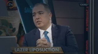 Lazer Liposuction